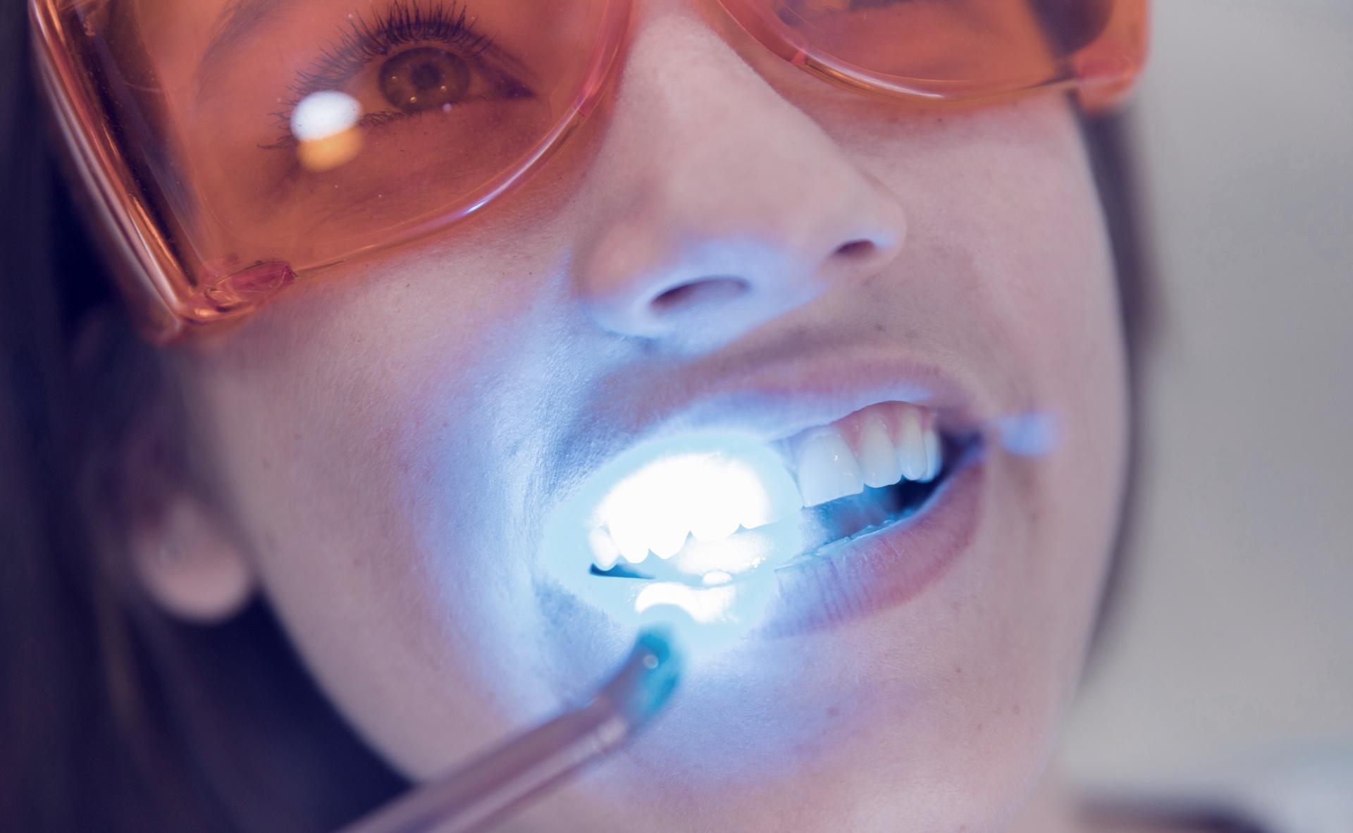Foto de Blanqueamiento dental