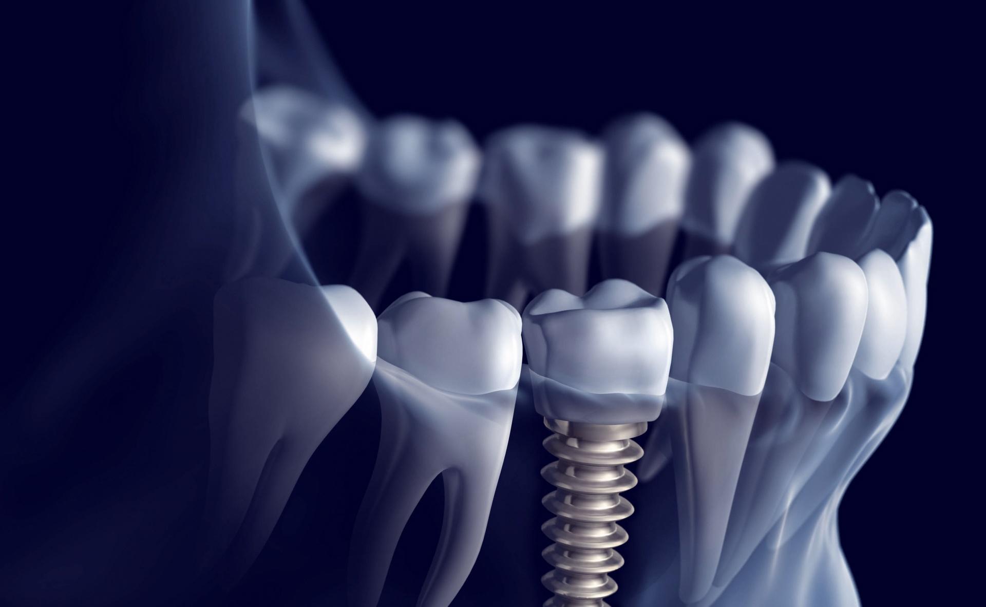 Foto de implante dental