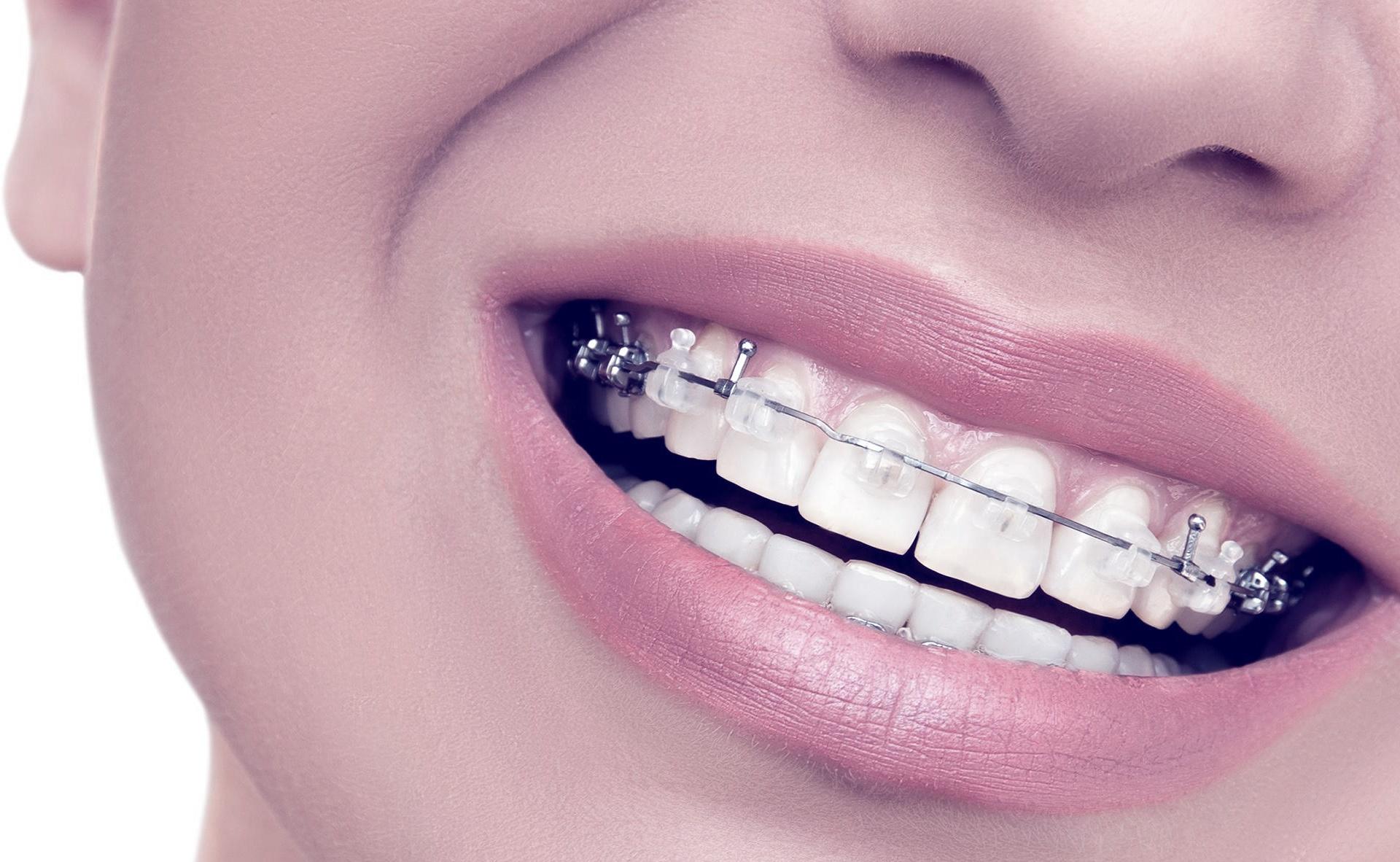 Foto de ortodoncia invisible
