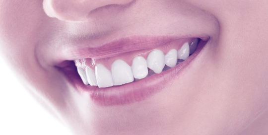 Foto de dientes sanos